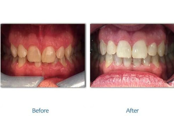 smile-before-after-1