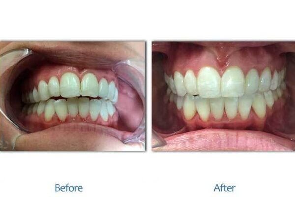 smile-before-after-2