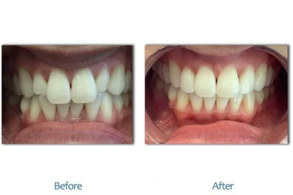 smile-before-after-3