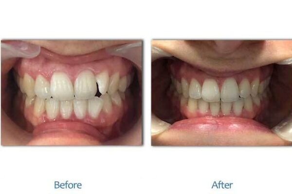 smile-before-after